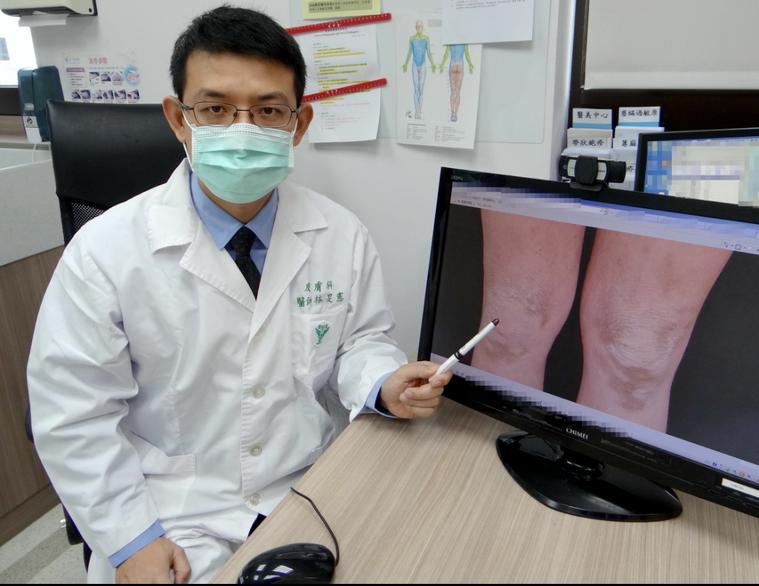 醫師林旻憲發表案例,調整免疫系統能治癒頑固異位性皮膚炎。圖/林旻憲提供