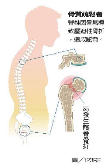 骨鬆患者易骨折部位 製表/元氣周報 圖/123RF