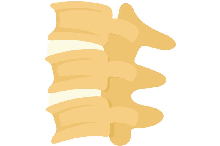 確診骨鬆後,該怎麼治療與監測骨密度是否上升? 圖/ingimage