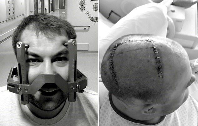 英國一名男子日前因脖子僵直疼痛諮詢家庭醫師,醫師說可能是因為工作姿勢不良引起,沒想到最後竟確診為腦瘤。 圖/取自dailymail