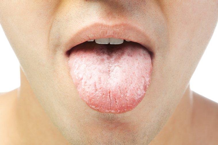 舌苔的變化有時可能正暗示著身體的健康狀態。圖/ingimage