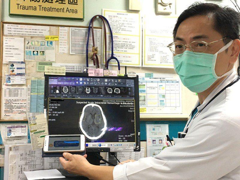彰化秀傳醫院與AI(人工智慧)公司合作,透過AI的腦出血自動判讀,腦出血病人平均提早了25分鐘離開急診,進入下一步處置和治療。 圖/秀傳醫院提供