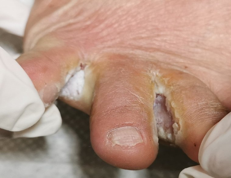 台中市澄清醫院中港院區皮膚科主任柯偉立指出,一名建築工人因為引發蜂窩性組織炎,且...