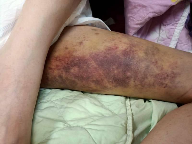 林姓男子到屏東某護理之家身體出現許多瘀青。記者陳弘逸/翻攝