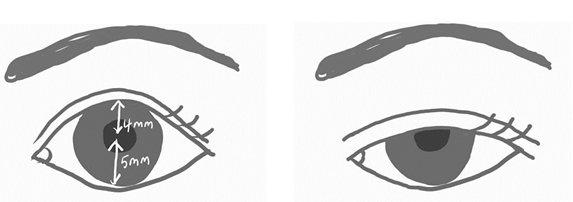 正常眼睛的黑眼珠可露出8-9釐米,一旦眼瞼垂到瞳孔,不僅看起來沒有精神,還會遮蔽...