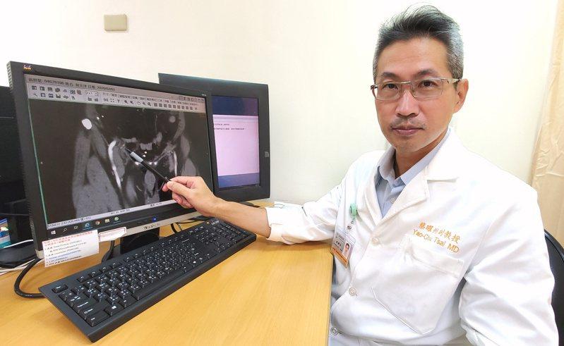 台北醫學大學附設醫院泌尿科主任蔡曜州分析2008年到2019年,總計506例施行腹腔鏡疝氣手術的案例,發現術後一周內恢復正常工作並不會增加腹股溝疝氣的復發機率。圖/台北醫學大學附設醫院提供