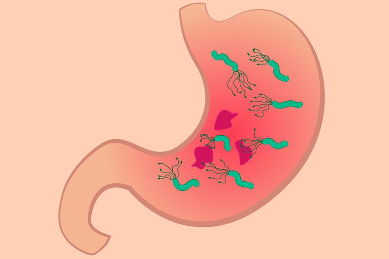 根據世界衛生組織(WHO)在二零零八年的統計,全球胃癌發生率是每十萬人有十四點一...