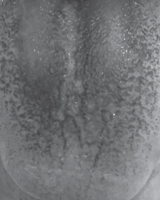 黑色舌苔。口腔菌叢之間失去生態平衡,讓某些細菌成為主流而改變舌苔顏色、出現口臭 ...