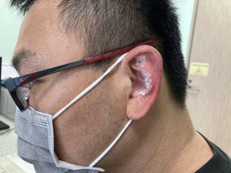 亞洲大學附屬醫院中醫科醫師吳俊昌指出,搭配耳穴治療部分,使用「王不留行(植物名)...