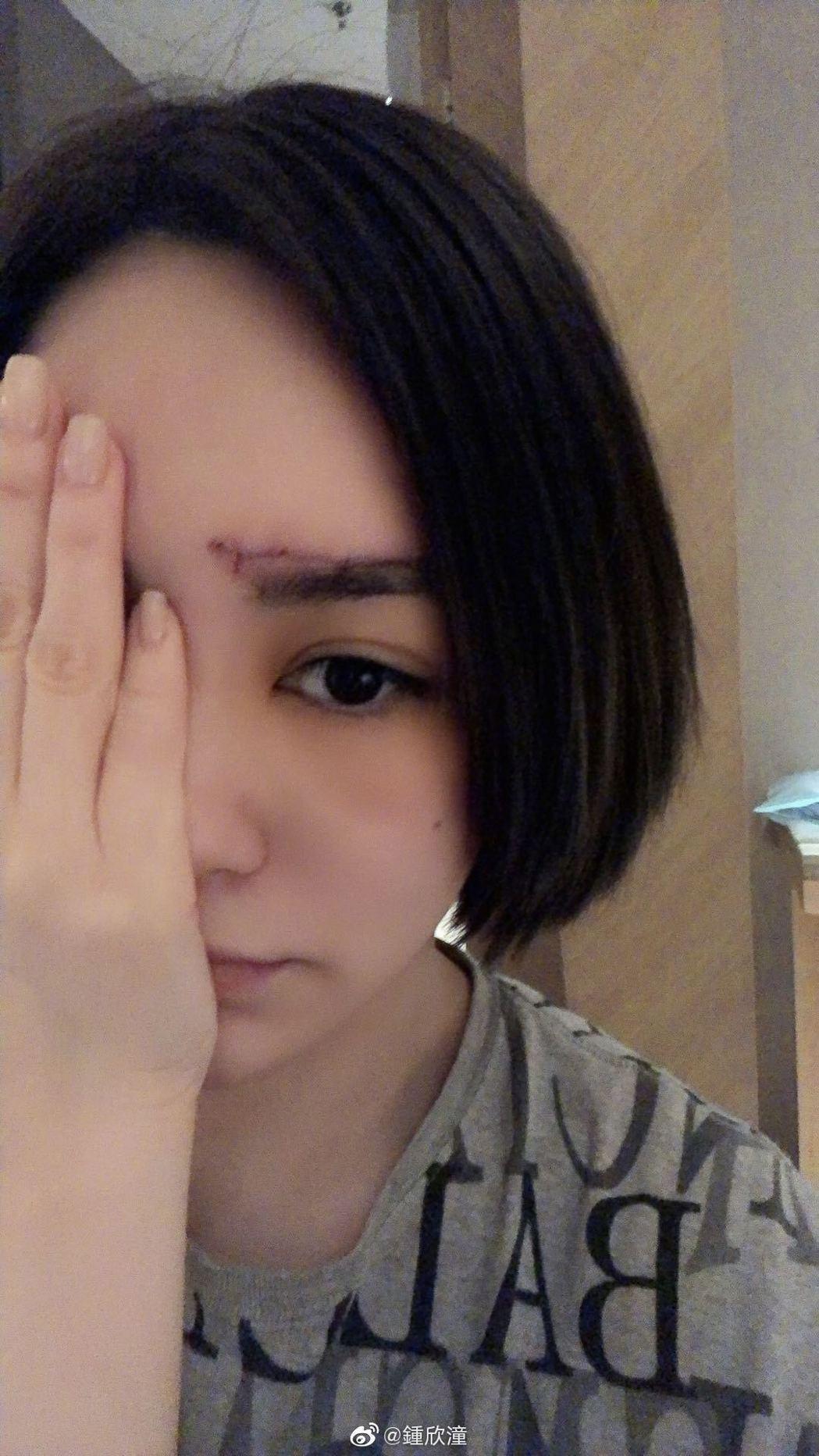 阿嬌日前才在微博秀出受傷照。圖/摘自微博