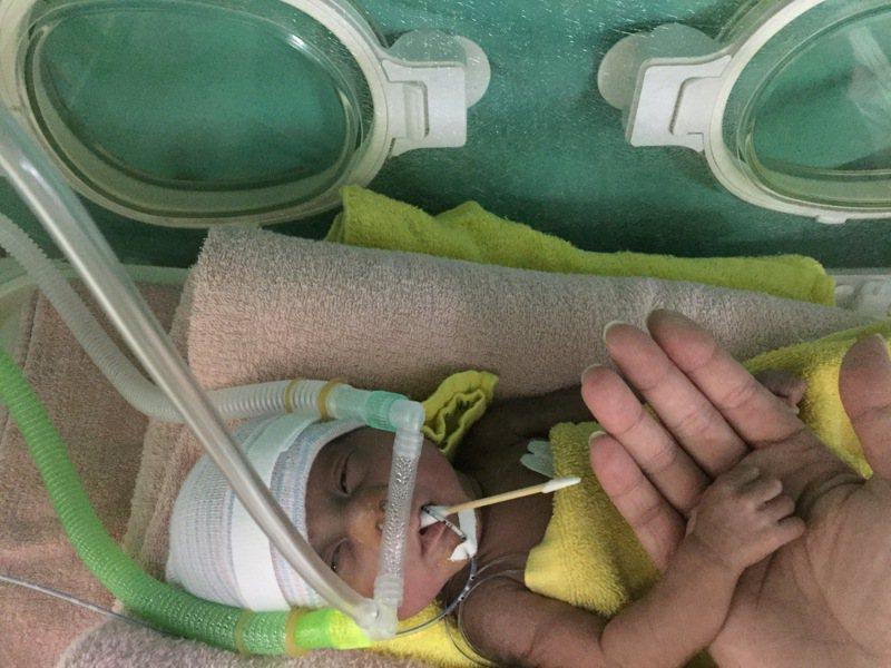 陳姓婦人懷孕23周產下僅660公克的兒子,如今已是1歲6個月的活潑男童。圖/中國醫藥大學兒童醫院提供