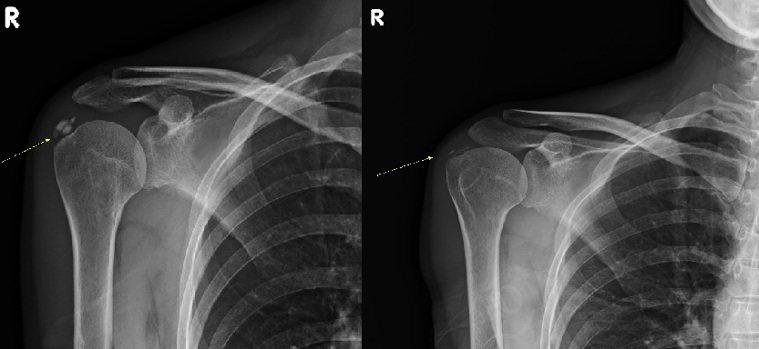 婦人接受水介質震波治療前(左)鈣化點明顯,治療後(右)鈣化點幾乎消失殆盡。照片/...