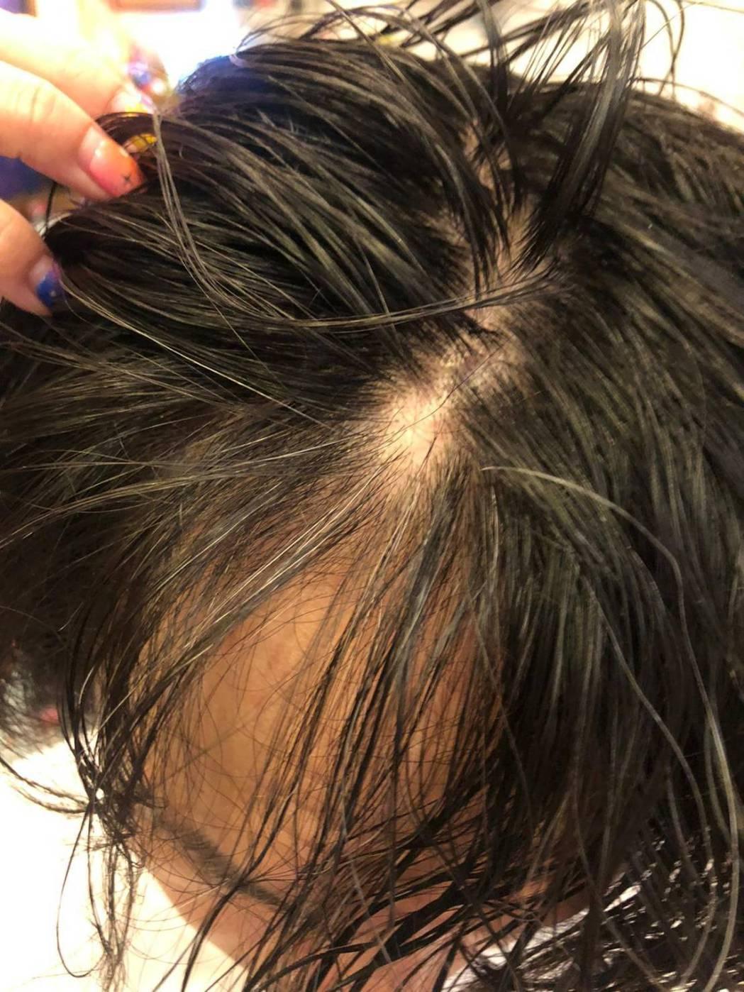 黃鐙輝壓力大到頭上一塊頭髮不見了。圖/華視提供