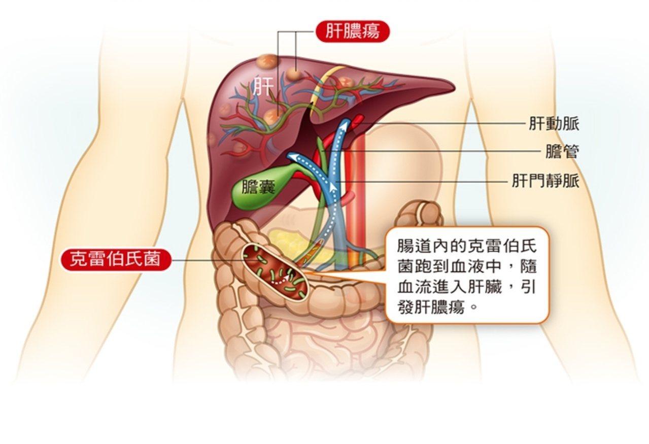 肝膿瘍形成示意圖。 圖/取自肝病防治醫學會好心肝會刊