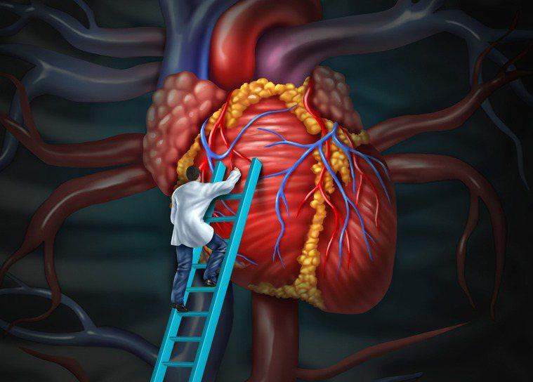 心臟示意圖。圖/ingimage