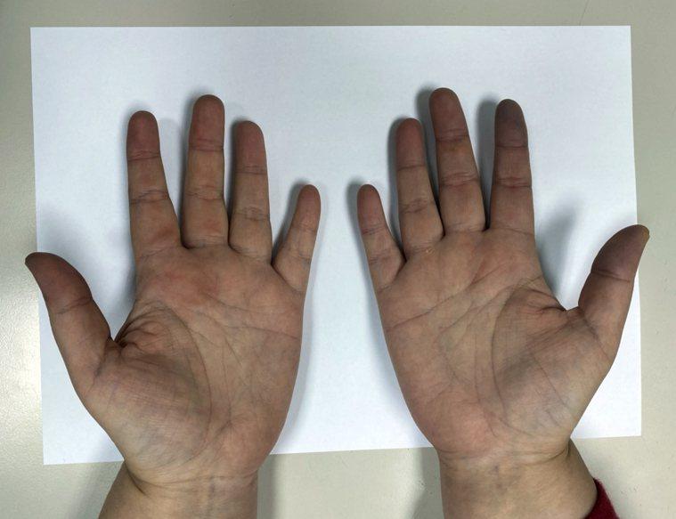 雷諾氏症患者皮膚會「白一節、紫一節」,有患者還會伴隨陣陣麻痛感。圖/萬芳醫院提供