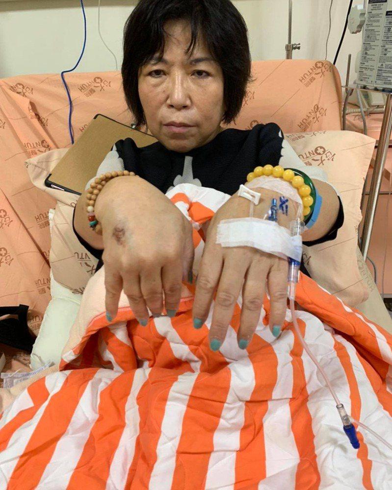 國民黨立委葉毓蘭右耳聽力受損,9日住院治療。葉毓蘭今天在臉書報平安,表示聽力有進步,會慢慢回復。圖/翻攝自葉毓蘭臉書