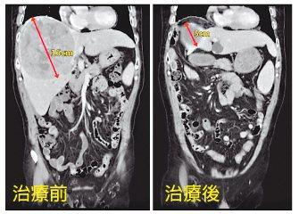 賴先生電腦斷層影像檢查,肝腫瘤治療前後比較。圖/亞洲大學附屬醫院提供