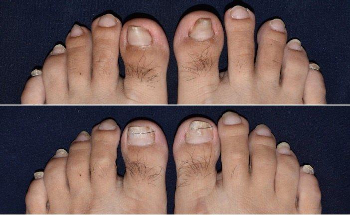 指甲矯正器治療技術已取代部分傳統切除手術,且能恢復指甲平坦外觀。 圖/成大斗六分...