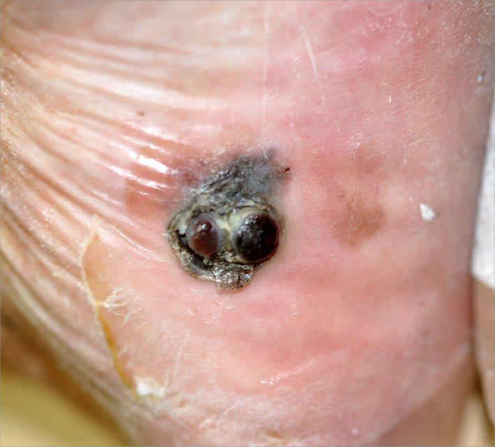 台灣黑色素細胞癌以肢端型最多,病灶多長在腳掌、指甲,初期症狀不痛不癢,導致部分病...