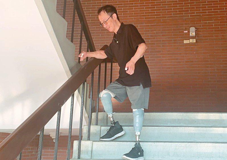 中山大學助理教授王致遠因感染截去四肢,雙腿裝上義肢,成為台灣首例「雙臂異體移植者」。記者徐如宜/攝影
