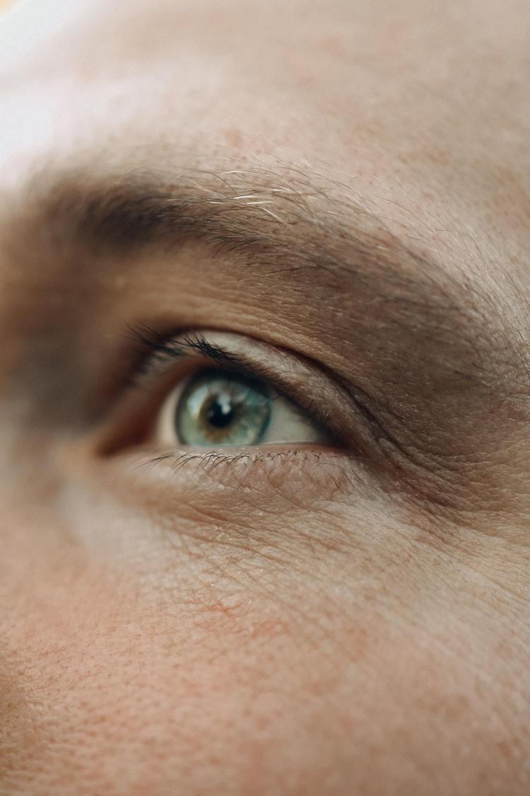 過於乾燥的肌膚臉上容易出現細紋。圖/摘自pexels