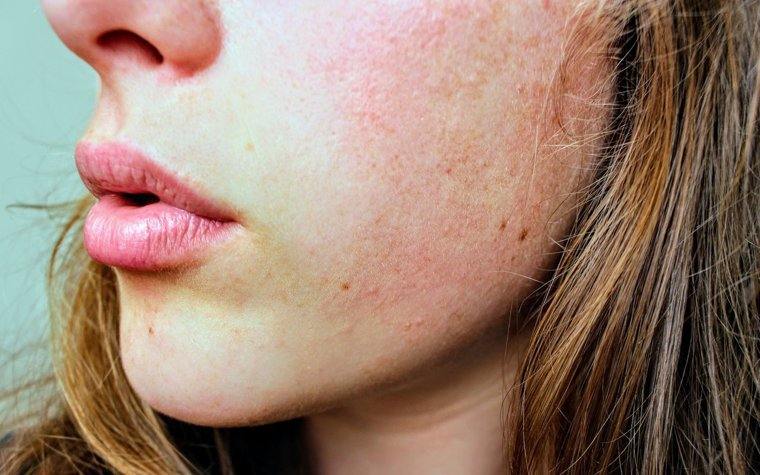 寒冷的冬天總會讓肌膚出現乾燥泛紅的問題。圖/摘自pexels
