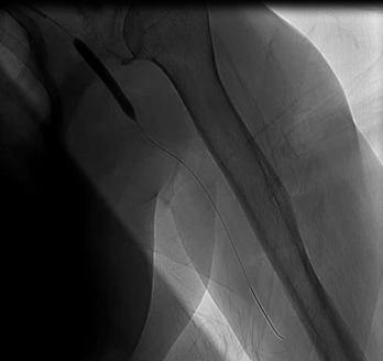 李姓婦人左手臂的腋動脈栓塞,醫師緊急開刀治療。 圖/門諾醫院提供