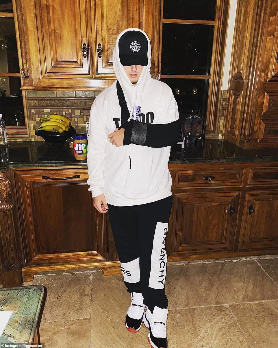 蓋吉在事故中僅受到輕傷,他19日在Instagram上發布自己纏著三角巾的照片。...