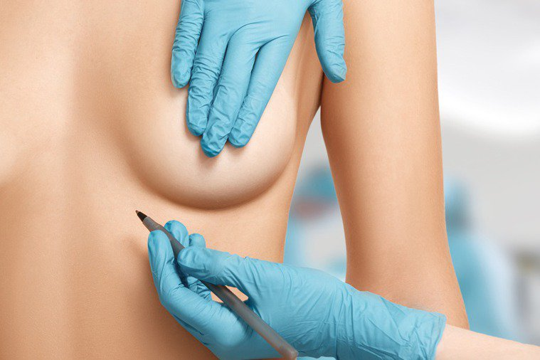 隆乳前記得做乳癌篩檢。圖/123RF