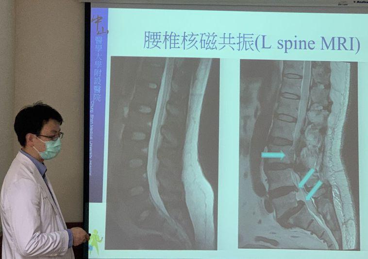 醫師楊宗熹指林姓病患腰椎椎間盤突出,造成急性下肢麻痛。圖/中山附醫提供