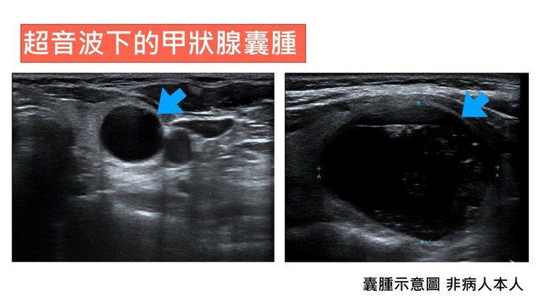 甲狀腺囊腫以超音波導引酒精注射治療,前後對照效果明顯。記者周宗禎/翻攝