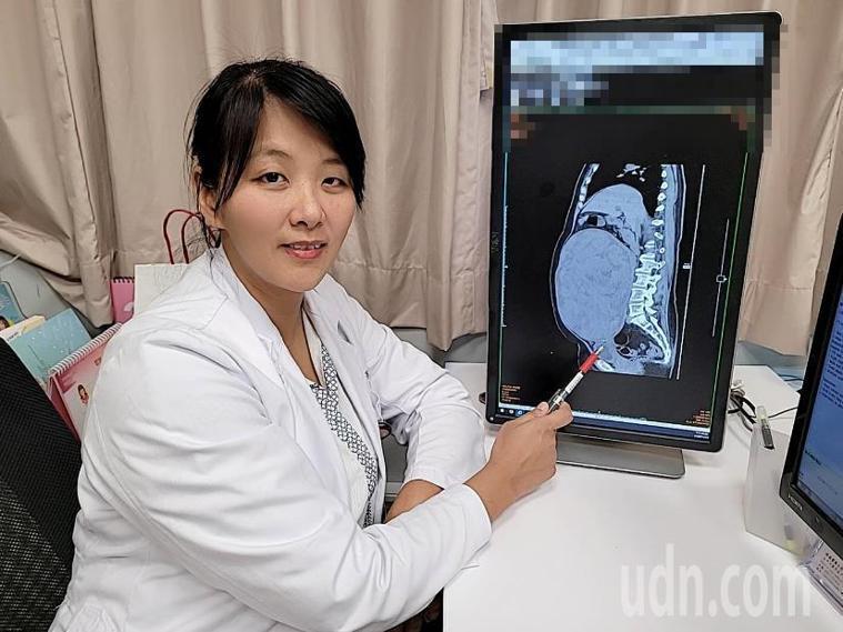 長安醫院醫師魏沛秝說,婦人的子宮肌瘤直徑27公分、重達7.9公斤,比雙胞胎還大。...