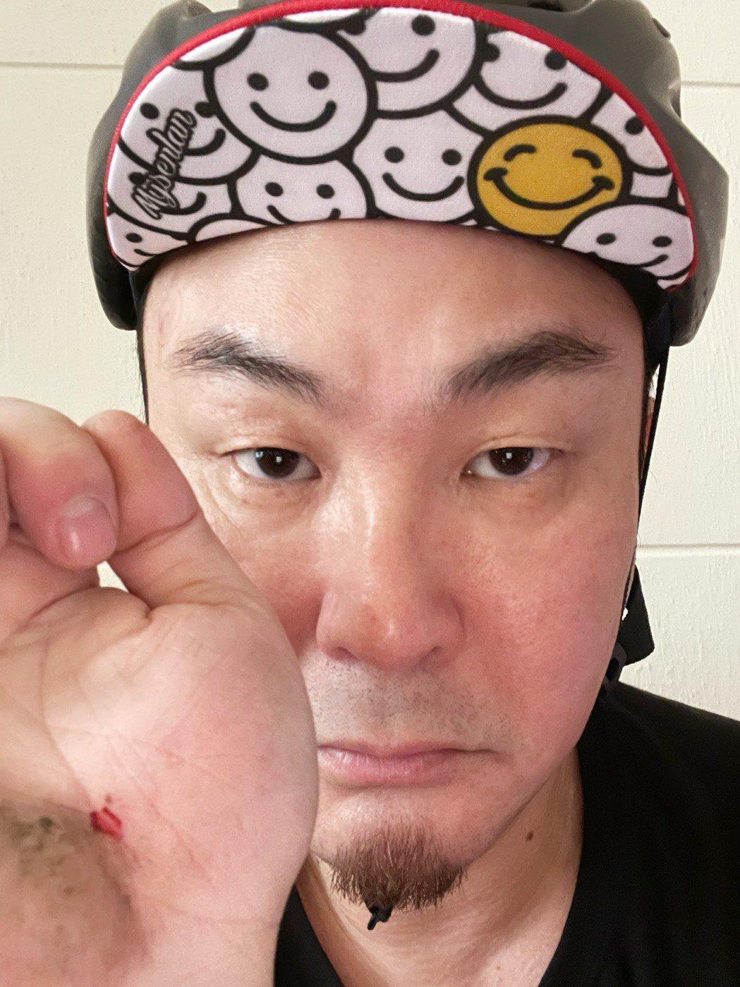 紅毛騎單車摔傷。圖/民視提供