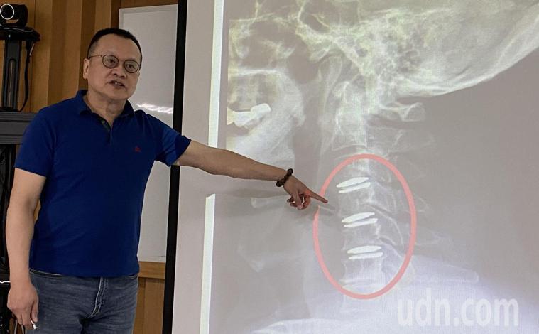醫師邵國寧說明,游姓病患多年必須利用小樹枝刺激鼻腔來打噴嚏,查出是頸椎椎間盤嚴重...
