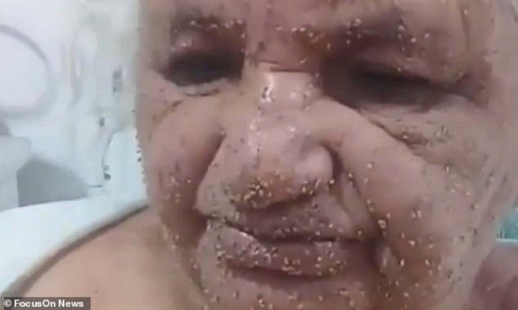 巴西一位72歲老婦人25日遭到殺人蜂圍攻,獲救後可見滿臉螫針,所幸目前已在復元中...