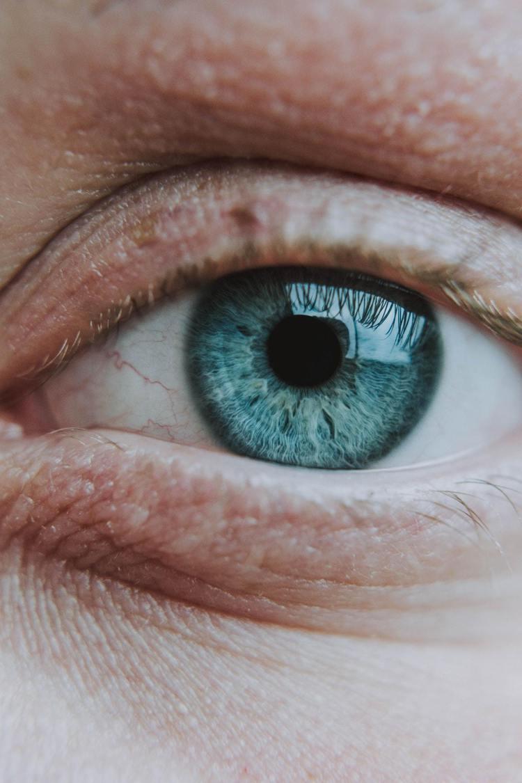 疲勞的眼睛,會使眼周肌膚出現紋路、暗沈,看起來超顯老。圖/摘自 pexels