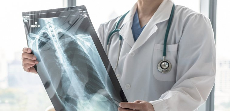 2+3代標靶治療接力賽,延長晚期肺癌患者存活期。圖/123RF