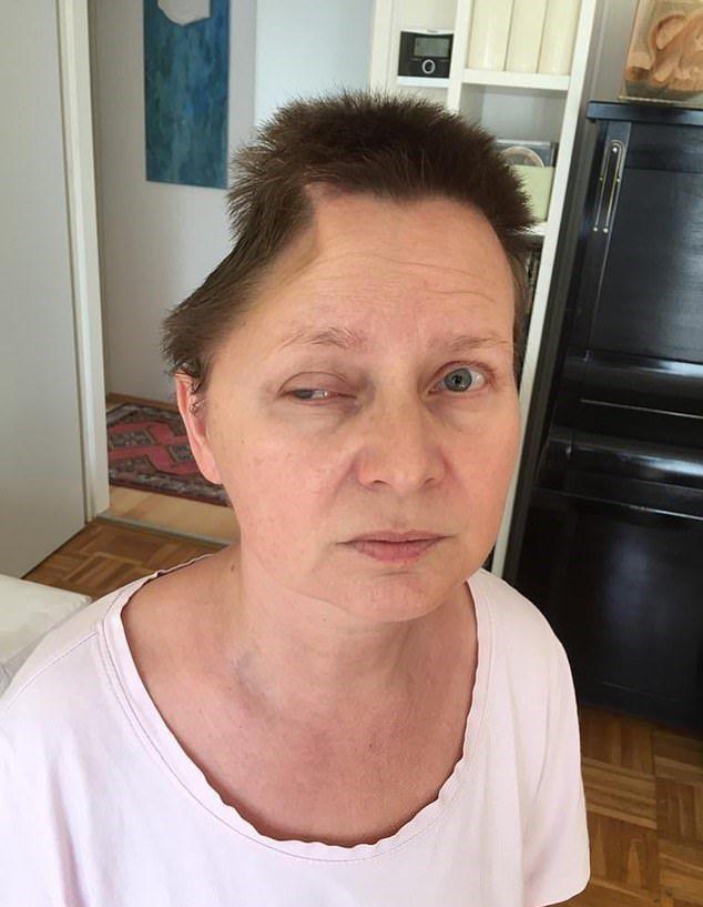 奧地利一名女教師從700公分高的三樓窗戶落下,腦部重傷且全身骨折,經歷手術移除頭部一大塊面積後竟奇蹟生還。圖/取自dailymail