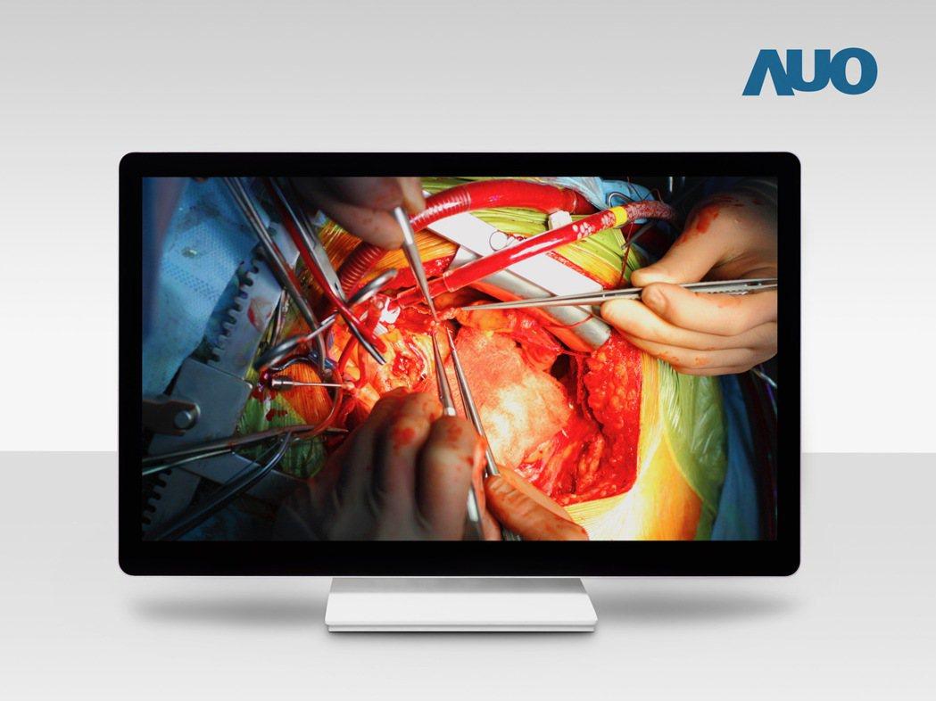 友達領先全球發表32吋4K超擬真手術用顯示器整機,導入醫療級最高分區Mini L...