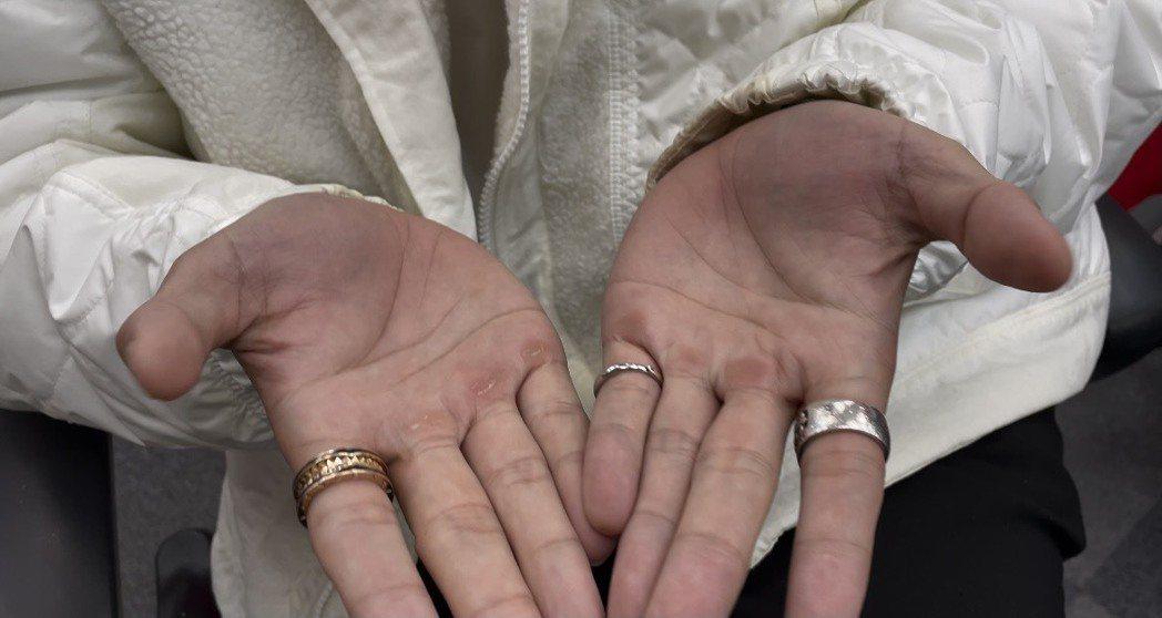 小鐘雙手攤開長了厚繭,原因啟人疑竇。記者葉君遠/攝影