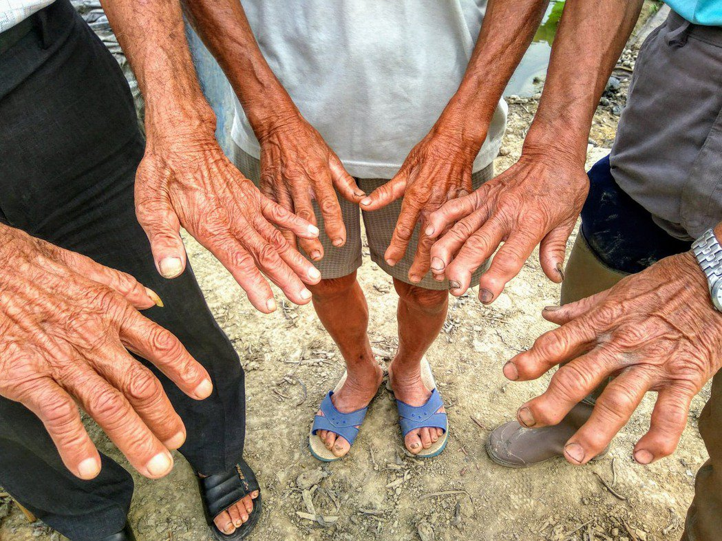 採蓮藕一輩子,農夫的手掌變形,指骨修長堅硬、指尖彎曲厚重,成為一雙從田裡長出的老...