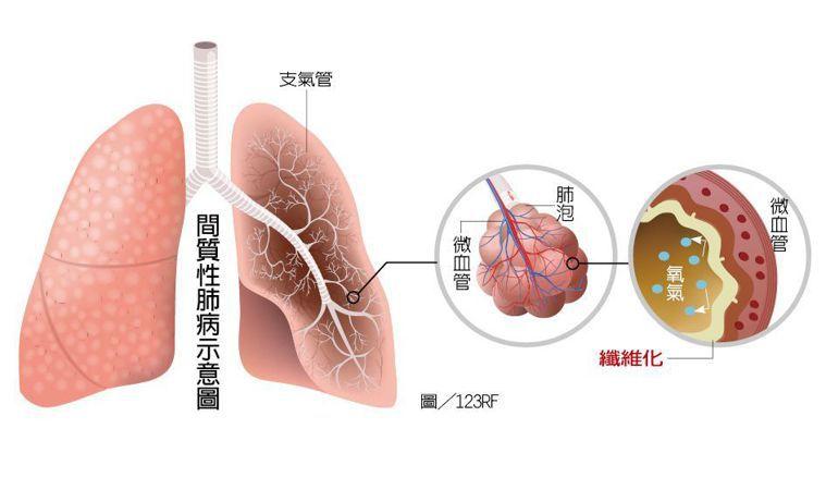 間質性肺病示意圖 圖/123RF 製圖/元氣周報