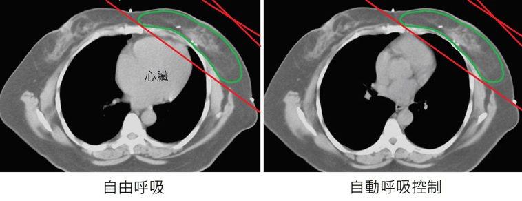 自動呼吸控制,減少心臟血管放射線劑量示意圖。(綠線:乳房/紅線:放射線照射範圍)...
