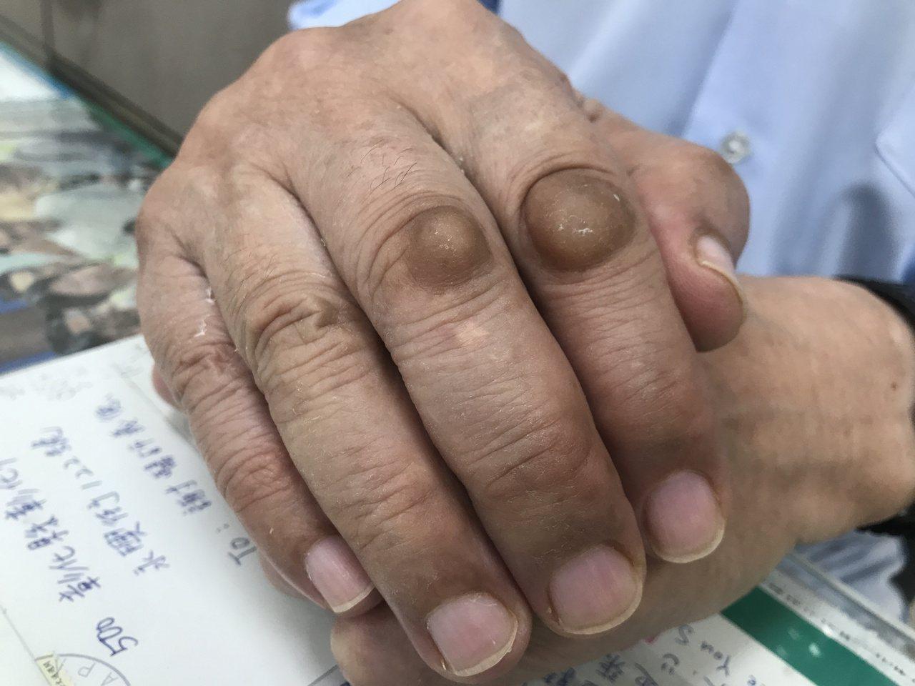 經常為病人按壓穴點治療,長年的按壓手指關結都明顯突出。  圖/林宛諭 攝影