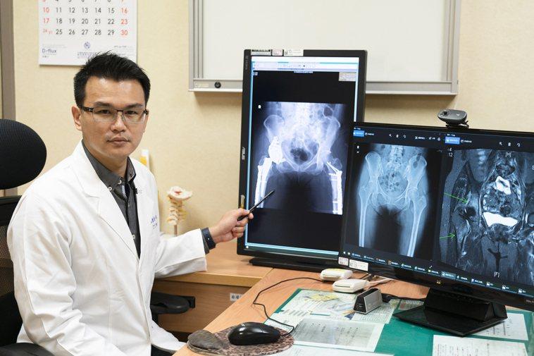 1名60歲大學女老師近1年來因下背部疼痛延伸到雙側大腿,在多家大醫院看病,始終無...