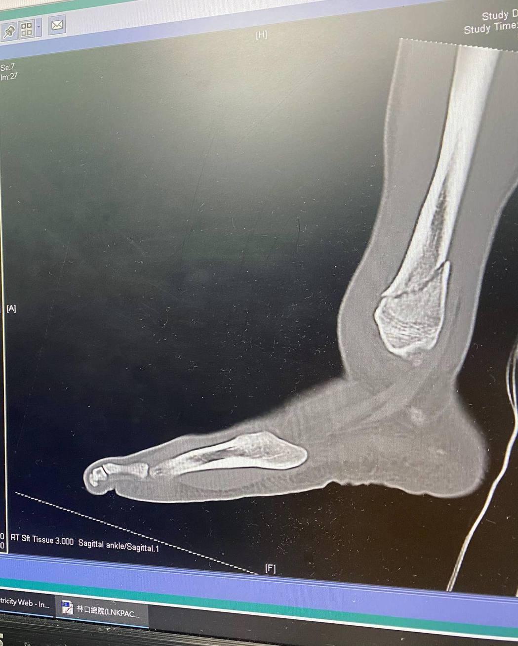 胡宇威腳踝嚴重骨折腫脹。圖/摘自臉書
