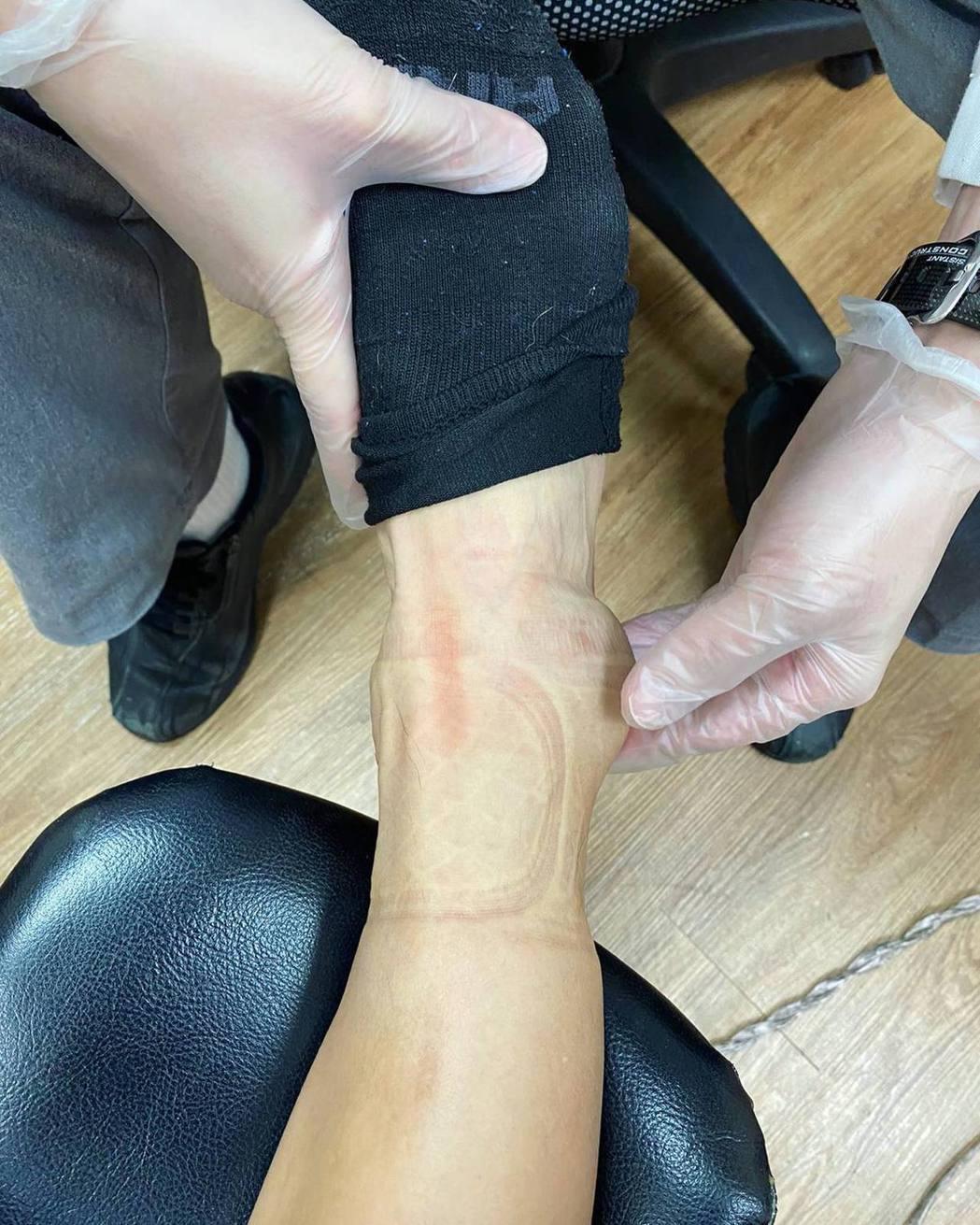胡宇威接受醫生診治。圖/摘自臉書