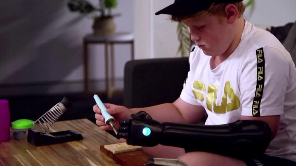 澳洲一位天生就沒有左手的少年約翰,近日裝上由英國公司Open Bionics開發...