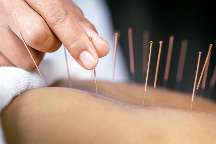 中醫治療自律神經失調,會用藥物和針灸同步進行。圖/123RF